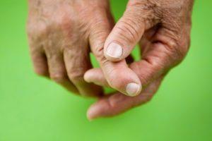 arthritis in ATSI populations